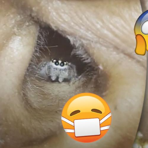 Woman Suffering Severe Headaches Finds Spider Living In Ear