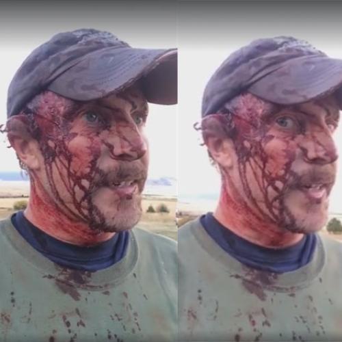 Bear Attack Survivor Recounts Ordeal On Facebook