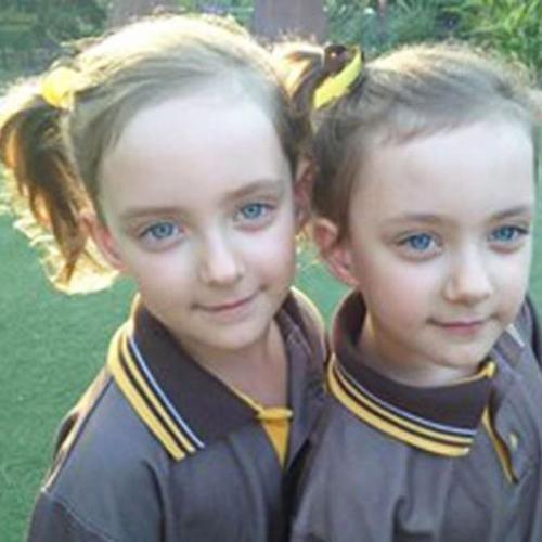 Miracle Twins Survive Umbilical Cords Dangerous Entanglement