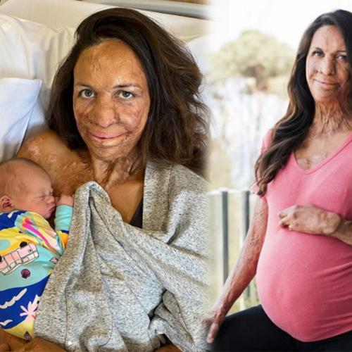 Turia Pitt Has Given Birth To Her Second Child With Fiancee Michael Hoskin