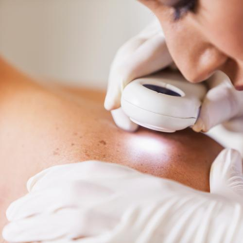 A Quarter of Queenslanders Misjudge Skin Cancer Risks